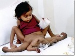 Lakshmi tatma two parasitic twin close view picture[2]